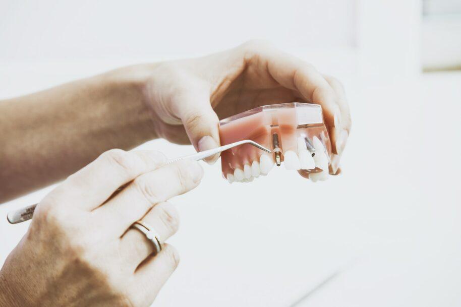 sofortimplantate vor und nachteile